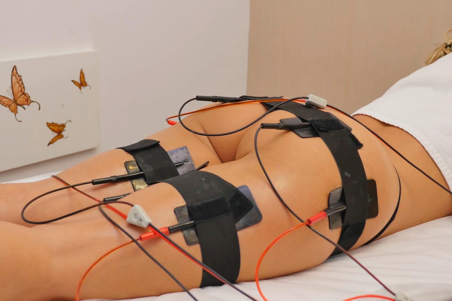 Omnia elektrostimulacija ili ultrazvuk